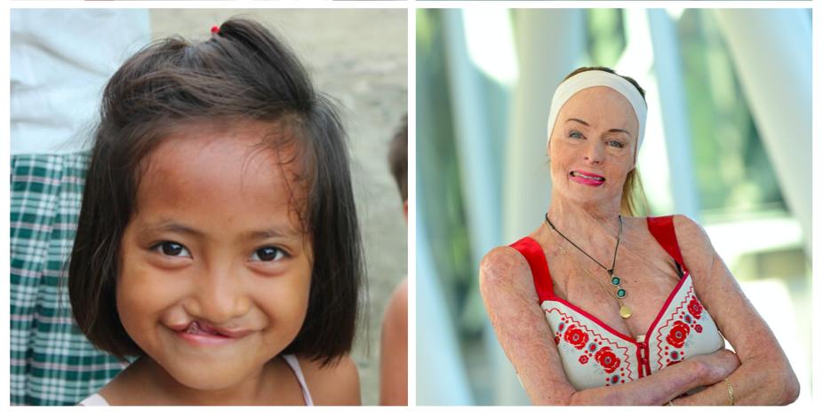 Face Equality International has released an International Media Standard on Disfigurement